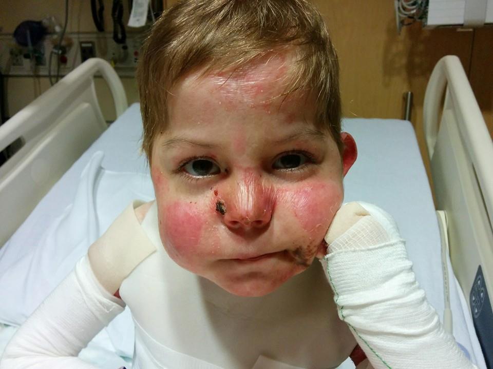 Ребенок бабочка болезнь