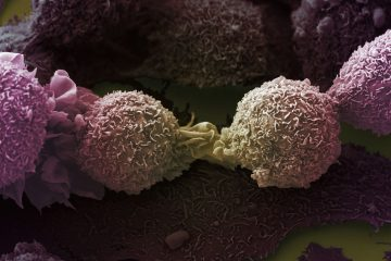 B0007213 Lung cancer cells